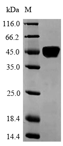 p56lck / LCK Protein - (Tris-Glycine gel) Discontinuous SDS-PAGE (reduced) with 5% enrichment gel and 15% separation gel.