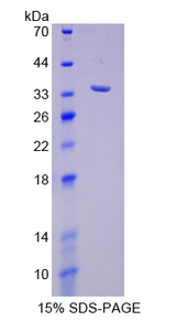 p66 / SHC Protein - Recombinant  SHC-Transforming Protein 1 By SDS-PAGE