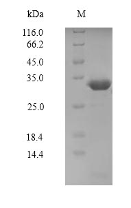 PAK7/PAK5 Protein - (Tris-Glycine gel) Discontinuous SDS-PAGE (reduced) with 5% enrichment gel and 15% separation gel.