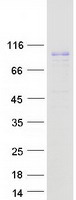 PAL / PAM Protein - Purified recombinant protein PAM was analyzed by SDS-PAGE gel and Coomassie Blue Staining