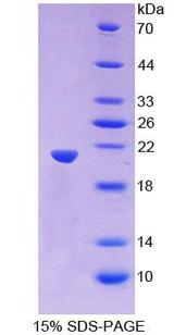 PANX1 / Pannexin 1 Protein - Recombinant  Pannexin 1 By SDS-PAGE