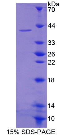 PARN Protein - Recombinant  Poly A Specific Ribonuclease By SDS-PAGE