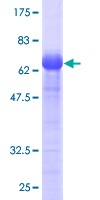 PARVA Protein - 12.5% SDS-PAGE of human PARVA stained with Coomassie Blue