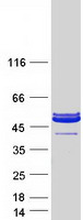 PARVA Protein - Purified recombinant protein PARVA was analyzed by SDS-PAGE gel and Coomassie Blue Staining