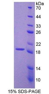 PCDH20 Protein - Recombinant  Protocadherin 20 By SDS-PAGE