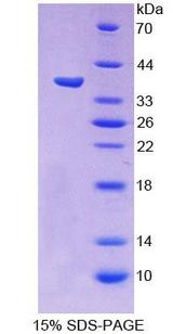 PCDHB15 Protein - Recombinant  Protocadherin Beta 15 By SDS-PAGE