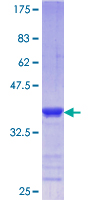 PCGF2 / MEL-18 Protein - 12.5% SDS-PAGE Stained with Coomassie Blue.