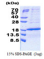 PCNA-Associated Factor Protein