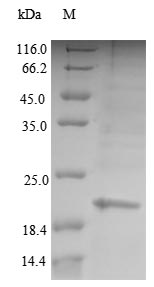 PCNA Protein - (Tris-Glycine gel) Discontinuous SDS-PAGE (reduced) with 5% enrichment gel and 15% separation gel.