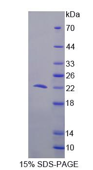 PDCD6 / ALG-2 Protein - Recombinant  Programmed Cell Death Protein 6 By SDS-PAGE