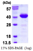 PDCL Protein