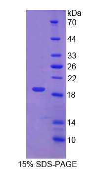 PDIA5 / PDIR Protein - Recombinant Protein Disulfide Isomerase A5 By SDS-PAGE