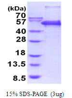 PEPD / PROLIDASE Protein
