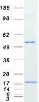 PFN2 / Profilin 2 Protein - Purified recombinant protein PFN2 was analyzed by SDS-PAGE gel and Coomassie Blue Staining