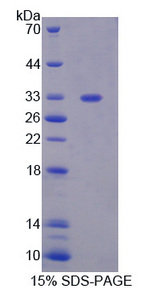 PGAM1 Protein - Recombinant Phosphoglycerate Mutase 1, Brain By SDS-PAGE