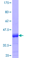 PHF7 Protein - 12.5% SDS-PAGE Stained with Coomassie Blue.