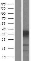 PHOX2A Protein - Western validation with an anti-DDK antibody * L: Control HEK293 lysate R: Over-expression lysate