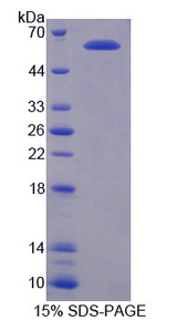 PIAS3 Protein - Recombinant Protein Inhibitor Of Activated STAT 3 By SDS-PAGE