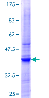 PIGT Protein - 12.5% SDS-PAGE Stained with Coomassie Blue