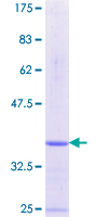 PKIA Protein - 12.5% SDS-PAGE Stained with Coomassie Blue.