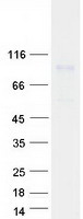 PLOD / PLOD1 Protein - Purified recombinant protein PLOD1 was analyzed by SDS-PAGE gel and Coomassie Blue Staining