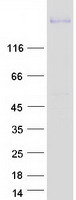 PLXNC1 / Plexin C1 Protein - Purified recombinant protein PLXNC1 was analyzed by SDS-PAGE gel and Coomassie Blue Staining