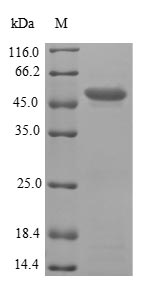 PNMA2 / MA2 Protein - (Tris-Glycine gel) Discontinuous SDS-PAGE (reduced) with 5% enrichment gel and 15% separation gel.