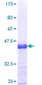 PNPLA6 / NTE Protein - 12.5% SDS-PAGE Stained with Coomassie Blue.