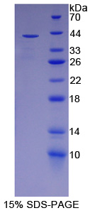 PON2 Protein - Recombinant  Paraoxonase 2 By SDS-PAGE
