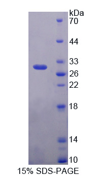 POU5F1 / OCT4 Protein - Recombinant  Octamer Binding Transcription Factor 4 By SDS-PAGE