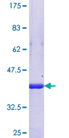PPHLN1 Protein - 12.5% SDS-PAGE Stained with Coomassie Blue.