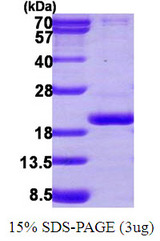 PPIL3 Protein