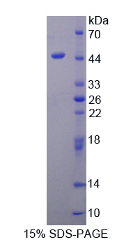 PPM1A / PP2CA Protein - Recombinant  Protein Phosphatase, Mg2+/Mn2+ Dependent 1A By SDS-PAGE