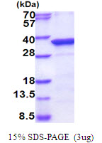PPM1D / WIP1 Protein