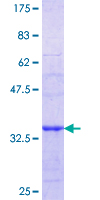 PPP3CC / CALNA3 Protein - 12.5% SDS-PAGE Stained with Coomassie Blue.