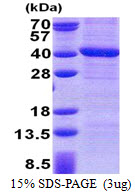 PPP4C Protein