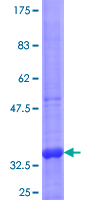 PRF1 / Perforin Protein - 12.5% SDS-PAGE Stained with Coomassie Blue.