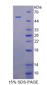 PRKAB1 / AMPK Beta 1 Protein - Recombinant  Protein Kinase, AMP Activated Beta 1 By SDS-PAGE