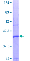 PRMT5 Protein - 12.5% SDS-PAGE Stained with Coomassie Blue.