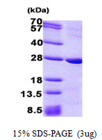 PRNP / PrP / Prion Protein