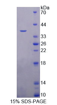 PSAT1 Protein - Recombinant  Phosphoserine Aminotransferase 1 By SDS-PAGE