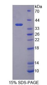 PSG2 Protein - Recombinant Pregnancy Specific Beta-1-Glycoprotein 2 By SDS-PAGE