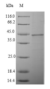 PSMB8 / LMP7 Protein - (Tris-Glycine gel) Discontinuous SDS-PAGE (reduced) with 5% enrichment gel and 15% separation gel.