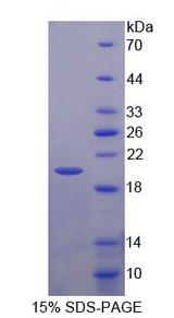 PTGER1 / EP1 Protein - Recombinant Prostaglandin E Receptor 1 By SDS-PAGE