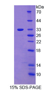 PTK6 / BRK Protein - Recombinant Protein Tyrosine Kinase 6 By SDS-PAGE