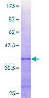 PTP1B Protein - 12.5% SDS-PAGE Stained with Coomassie Blue.
