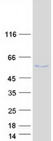 PTP1B Protein - Purified recombinant protein PTPN1 was analyzed by SDS-PAGE gel and Coomassie Blue Staining