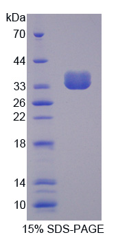 PTPN6 / SHP1 Protein - Recombinant Protein Tyrosine Phosphatase, Non Receptor Type 6 By SDS-PAGE