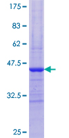 PYGM Protein - 12.5% SDS-PAGE Stained with Coomassie Blue.
