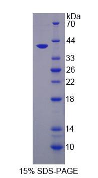QPCT / QC Protein - Recombinant Glutaminyl Peptide Cyclotransferase By SDS-PAGE